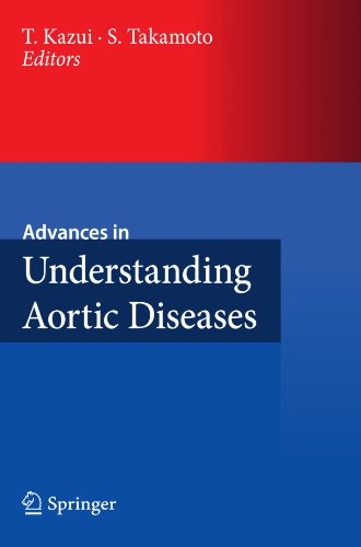 Advances in Understanding Aortic Diseases 1st Edition Pdf Free Download