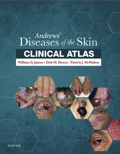 Andrews' Diseases of the Skin Clinical Atlas 1st Edition Pdf Free Download