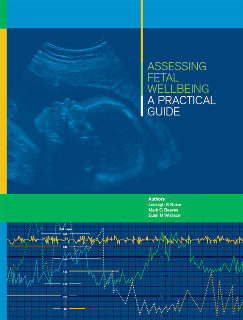 Downloading Assessing Fetal Wellbeing : A Practical Guide 1st Edition