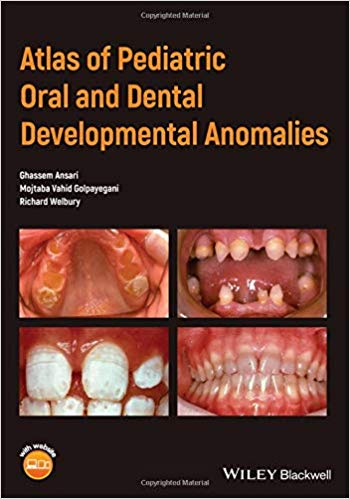 Atlas of Pediatric Oral and Dental Developmental Anomalies 1st Edition Pdf Free Download