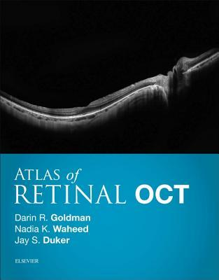 Atlas of Retinal Oct 1st Edition Pdf Free Download