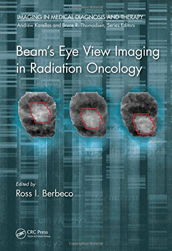 Beam's Eye View Imaging in Radiation Oncology 1st Edition Pdf Free Download