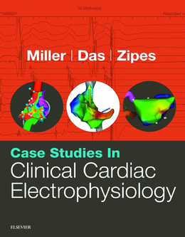 Case Studies in Clinical Cardiac Electrophysiology 1st Edition Pdf Free Download