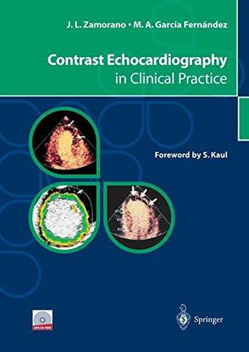 Contrast Echocardiography in Clinical Practice 1st Edition Pdf Free Download