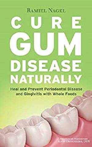 Cure Gum Disease Naturally 1st Edition Pdf Free Download