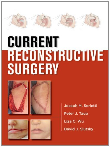 Current Reconstructive Surgery 1st Edition Pdf Free Download