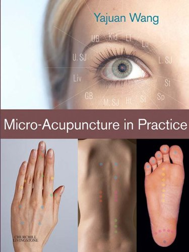 Micro-Acupuncture in Practice 1st Edition Pdf Free Download