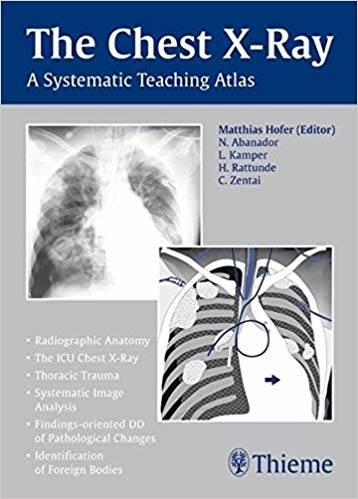 The Chest X-Ray: A Systematic Teaching Atlas 1st Edition Pdf Free Download