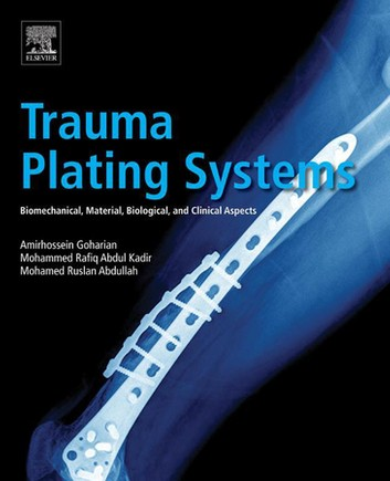 Trauma Plating Systems 1st Edition Pdf Free Download